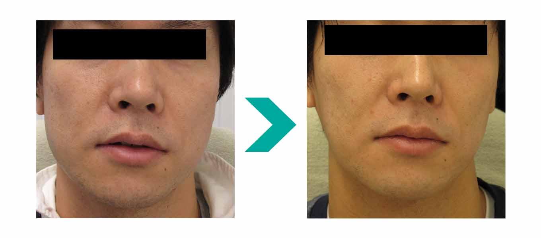 ボトックス 歯ぎしり 歯ぎしりになる理由とその治療|口腔外科医が治療をおこなう歯ぎしり治療|東京銀座シンタニ歯科口腔外科クリニック